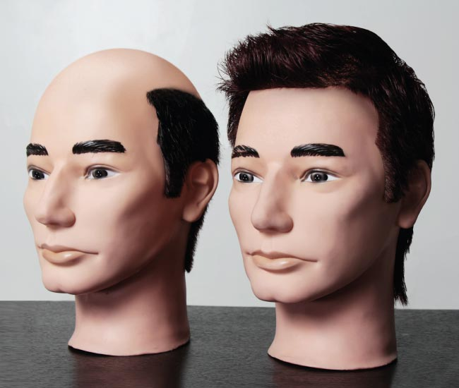 Asesoría en sistema de cabellos o prótesis capilar